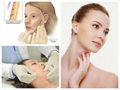 Quy trình căng da mặt được thực hiện ở những cơ sở uy tín