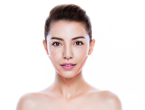 Căng da mặt bằng chỉ sinh học sẽ đem lại khuôn mặt trẻ trung