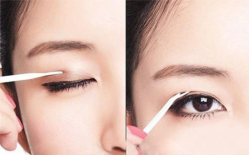 Kích mí mắt tạo mắt 2 mí cũng được nhiều người lựa chọn